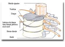 tracé du nerf sciatique